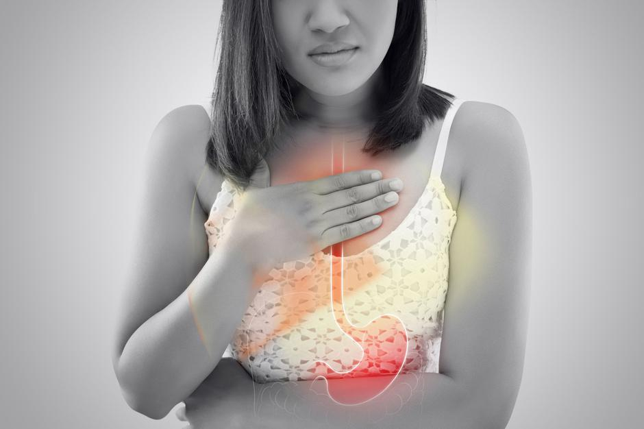 21 Home Remedies to Prevent Heartburn/Acid Reflux